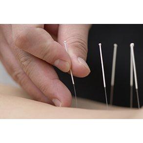 Akupunktur kurser